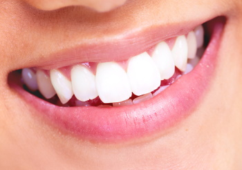 teeth whitening st lucie west